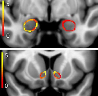 Image of brain of young adult marijuana smoker